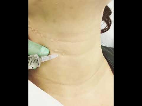 La colite nel fondo di uno stomaco si ferisce una vita
