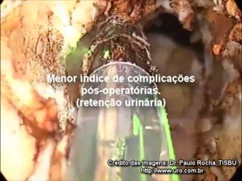 Prostatica microflora mista