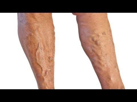 Wie die Varikose auf den Beinen erscheint