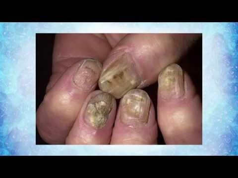 Die Zwiebelschale die Behandlung von der Schuppenflechte