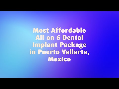 Most-Affordable-All-on-6-Dental-Implant-Package-in-Puerto-Vallarta-Mexico