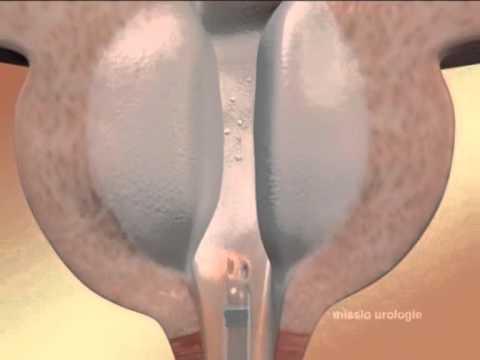 Простата лечение народна медицина