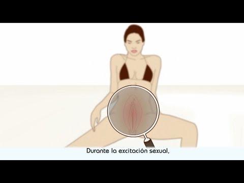 Rompe el condón durante las relaciones sexuales con una prostituta