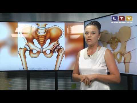 Care este tratamentul pentru inflamația articulației șoldului