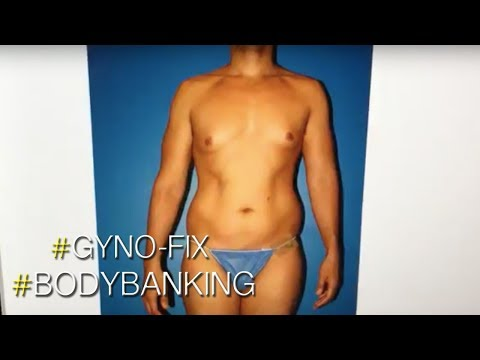Gynecomastia (Male Breast Reduction) and Body Banking Procedure Performed By Dr Steinbrech