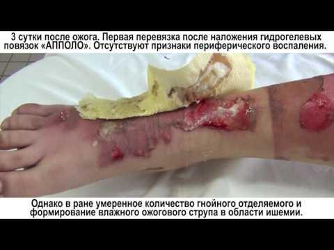 Koślawego niższej masaż nóg