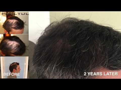 Olej rycynowy do włosów stosuje się na mokre lub suche włosy