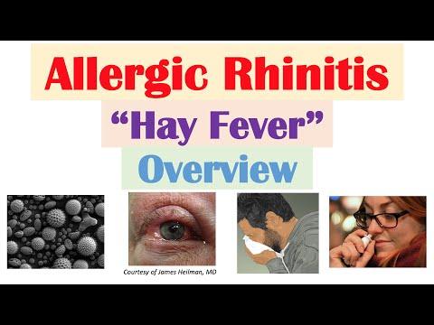 Alergiczny nieżyt nosa (katar sienny) - patogeneza, czynniki ryzyka, objawy, diagnoza, leczenie