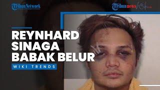 Foto Babak Belur Reynhard Sinaga, Pelaku Pemerkosaan Terbesar Inggris, Dirilis ke Publik