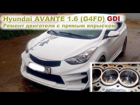 Фото к видео: Hyundai AVANTE 1.6 GDI: Ремонт двигателя с прямым впрыском