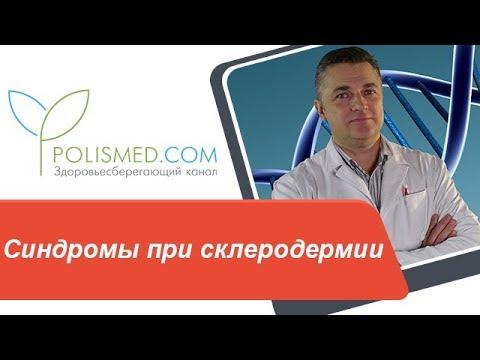 Синдромы при склеродермии: Рейно, Шегрена. Стадии ограниченной склеродермии