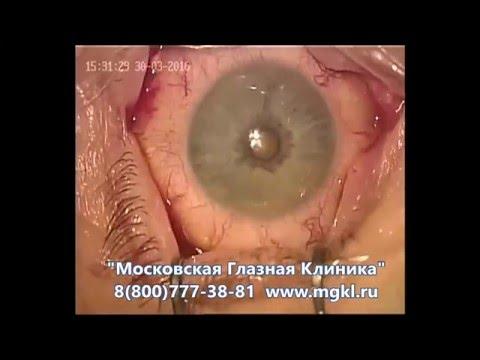 Оптика купить очки для зрения оптом