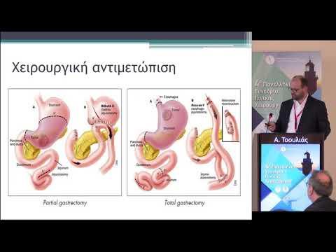 Α. Τοουλιάς - Καρκίνος στομάχου