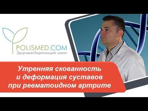 Утренняя скованность и деформация (изменения) суставов при ревматоидном артрите