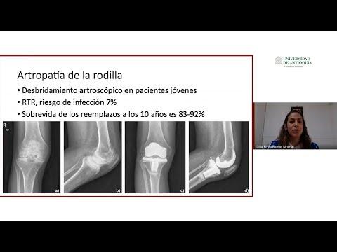 Artroza articulației pelvine