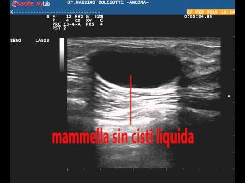 Porzioni di tenuta nella prostata