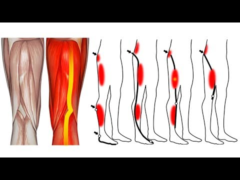 Set di strumenti per ginocchio