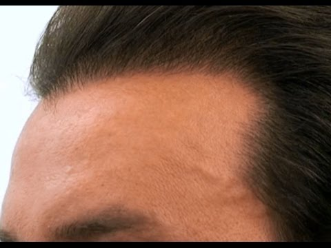 Maschera per capelli di albume