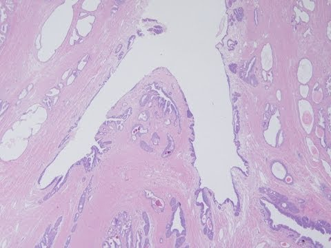 Sevanje rak prostate