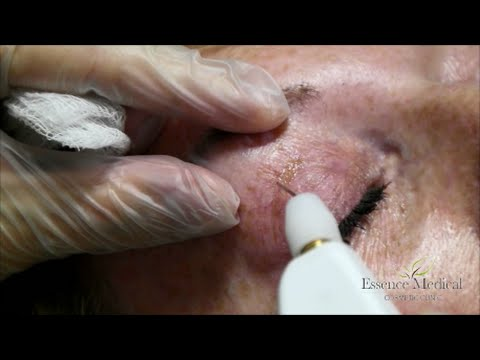 Plasma Eye Lift - Dr Kieren Bong - Plexr Blepharoplasty