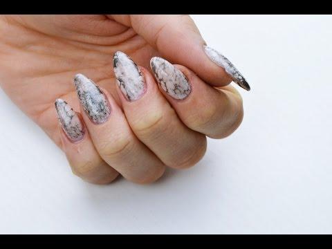Gribok des Nagels die Symptome die Behandlung des Fotos