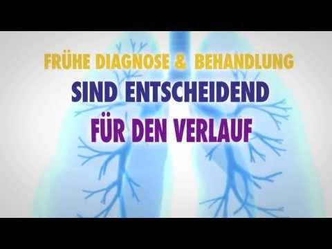 Medikamente gegen Bluthochdruck Medikamente Liste