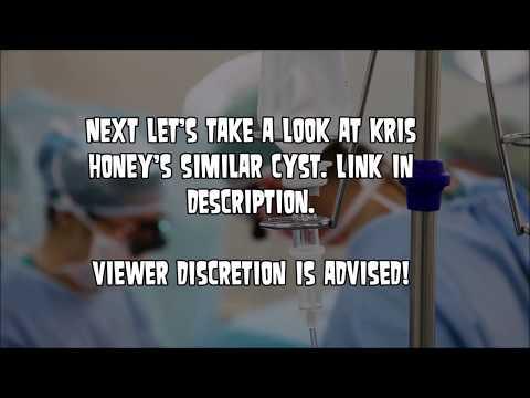 Popping Sinus Cyst! What is a Preauricular Sinus? (Zits) - смотреть