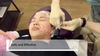 Premier Clinic Non-surgical Thread (MINT) Lift Procedure