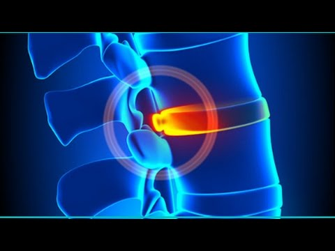 Atlanta Medical Center Tula hip laser