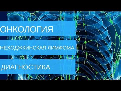 НЕХОДЖКИНСКАЯ ЛИМФОМА - диагностика на 1,2,3,4 стадии