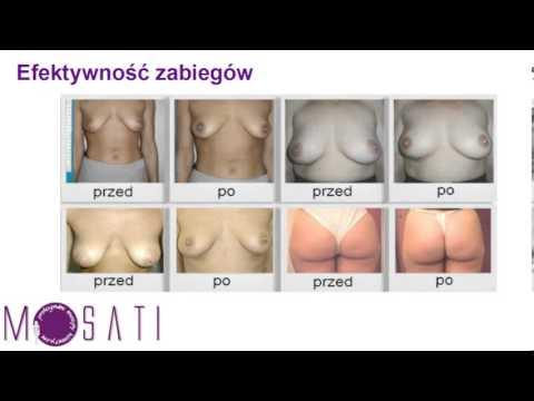 Jak zwiększyć piersi bez szkody i operacji