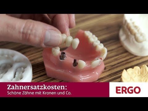 Schöne Zähne mit Kronen und Co.: Welchen Zahnersatz gibt es? - ERGO Deutschland