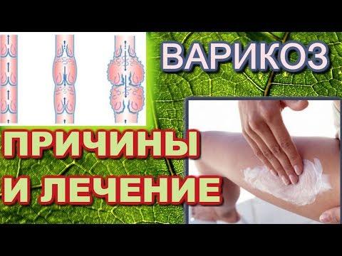 Лечение варикозного расширения вен и причины его появления . Дуйко АА встреча 2018 год май.