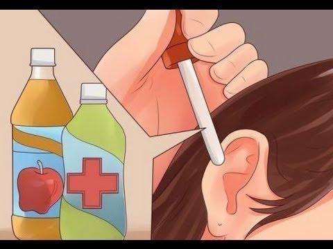 Arreglar los lados el vientre y la barbilla