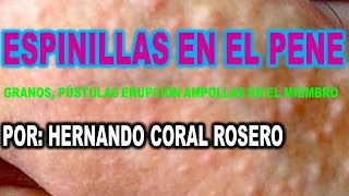 ESPINILLAS EN EL PENE ( GRANOS PÚSTULAS ERUPCIÓN  AMPOLLAS EN EL MIEMBRO )