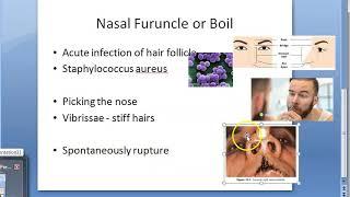 ENT Nasal Furuncle Hair Follicle Furunculosis Nose Boil