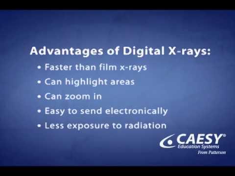 Video Advantages of Digital X-Ray