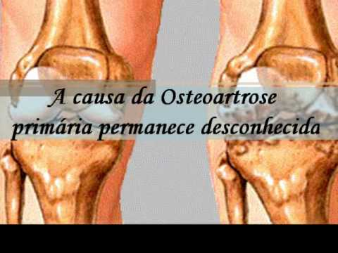 Forum caviglia endoprotesi