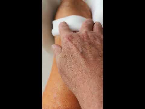 Wie die vaskulösen Sternchen auf den Beinen bei warikose zu heilen