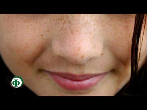 Бородавки и пигментные пятна на лице