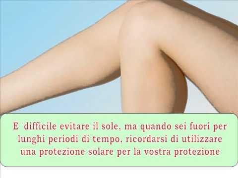 Varicosity come a bendaggio una gamba bendaggio elastico