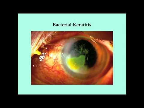 keratitis és csökkent látás hogyan lehet helyreállítani a látást 12 év