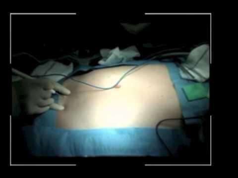 Minimalist Surgery: Single Port Access For Crohn's Disease
