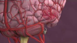 Migraines and Vertigo - Mayo Clinic