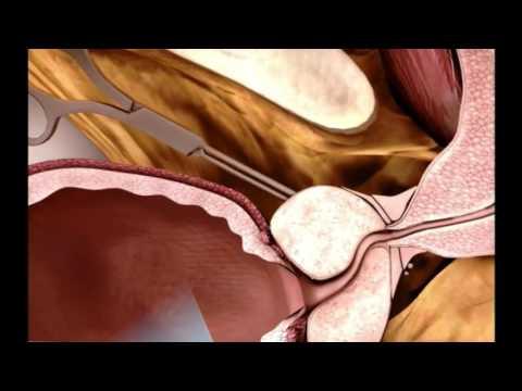 Не полостная операция по удалению аденомы простаты