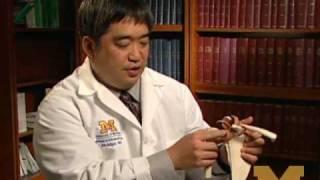 Recurrent shoulder dislocation? New U-M procedure effective when standard repairs are not