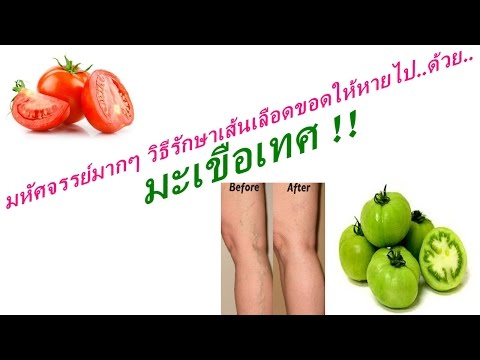 โรค thrombophlebitis Buerger ของ