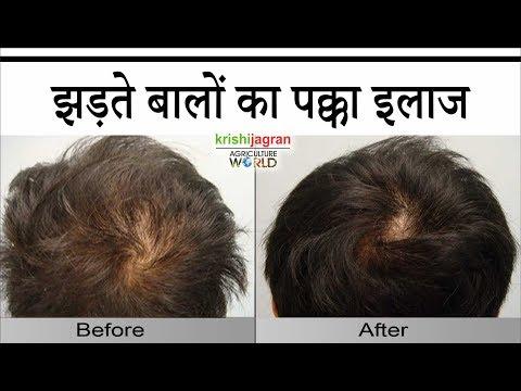 बालों को झड़ने से कैसे रोकें