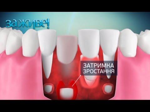 5 методов, которые помогут вырвать молочный зуб ребенку – За живе! Сезон 3. Выпуск 72 от 29.12.16