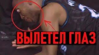 Травмы В Баскетболе, Которые Испугают Кого Угодно!